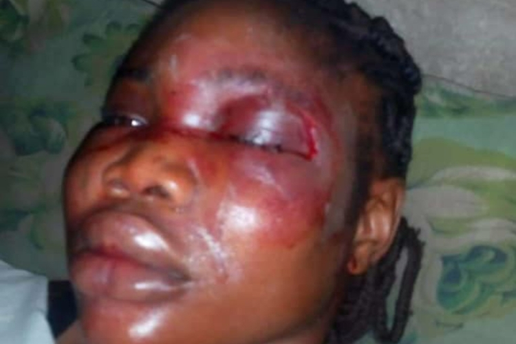 Lady brutally beaten by fiancee